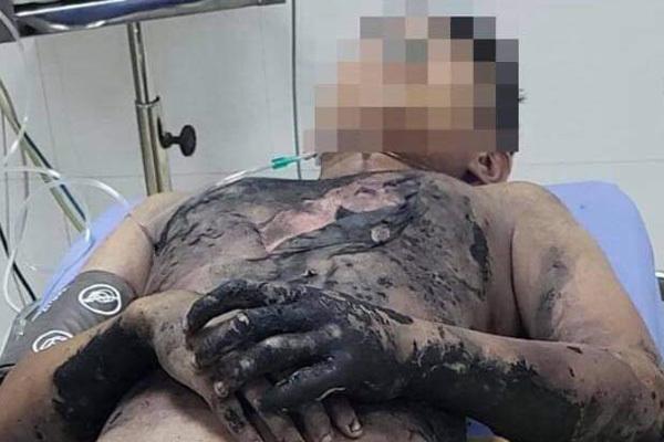 Làm thí nghiệm bằng cồn tại nhà, bé trai bị bỏng nặng