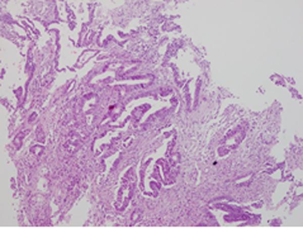 Phát hiện sớm ung thư đường tiêu hóa bằng nội soi