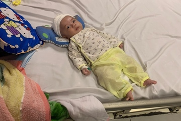 Mẹ mắc tâm thần, 'bố đẻ' ruồng bỏ, cháu bé 2 tháng tuổi nguy kịch vì xuất huyết não, viêm phổi