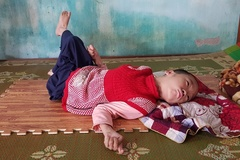 Tia hy vọng mong manh của bé gái 10 tuổi bị bại não
