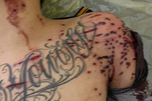 Nam thanh niên ngã gục ở trạm thu phí với chi chít vết đạn trên người