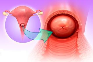 Người phụ nữ mãn kinh hơn 30 năm, đột nhiên ra máu bất thường