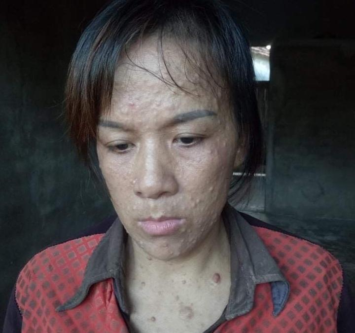 Mắc bệnh lạ, người phụ nữ bị chồng bỏ rơi, con thơ nheo nhóc