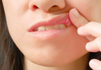 Vết loét miệng hay bị bỏ qua có thể là dấu hiệu của ung thư