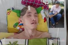 Con trai cao 1m75 thoáng chốc còn 40kg, cha già khóc trong bất lực