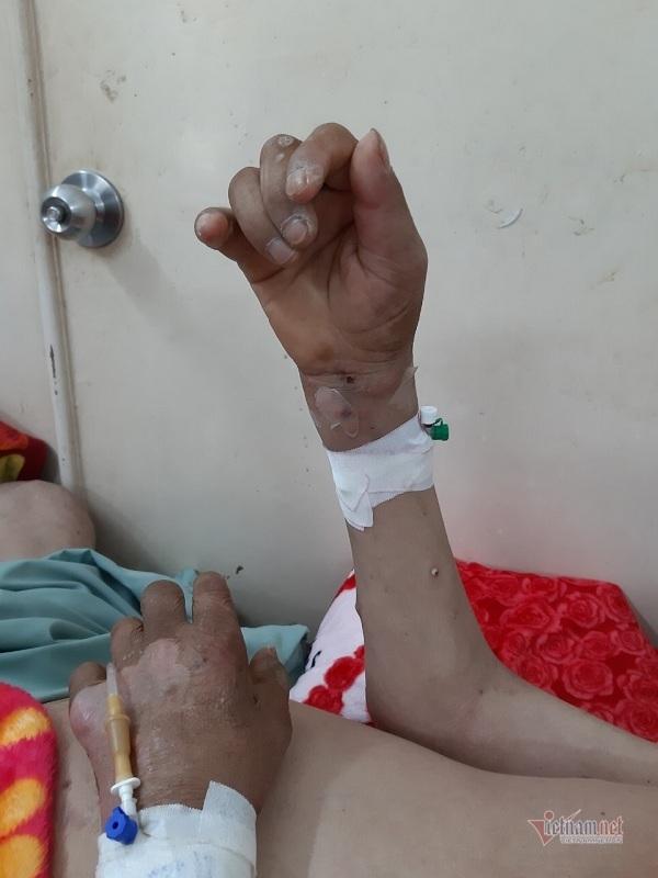 10 năm ròng cầm cự thuốc giảm đau, người đàn ông bị bệnh biến chứng nguy kịch