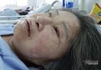 Giọt nước mắt thương con của người đàn bà bệnh tật tuổi xế chiều