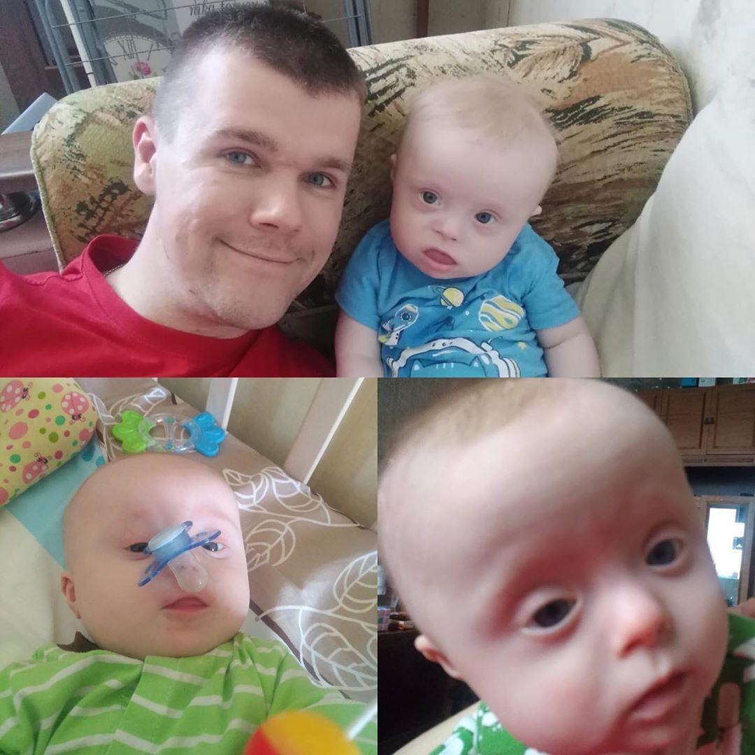 Nỗ lực của người cha nuôi con mắc bệnh Down