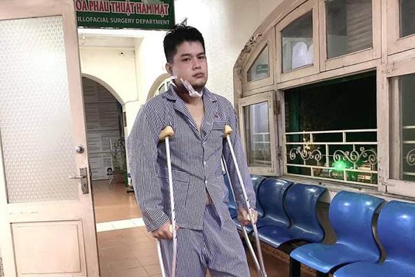 Diễn viên Long Chun bị u xương hàm phải dừng thi Gương mặt thân quen
