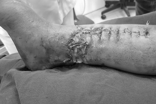 Bé trai Thanh Hoá bị máy xúc múc nát chân