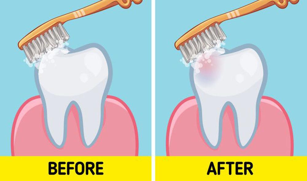 Lời khuyên của nha sĩ về việc nên đánh răng trước hay sau bữa sáng
