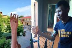 Cánh tay robot hỗ trợ sinh hoạt cơ bản cho người khuyết tật