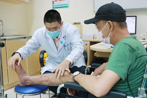 Dùng dầu nóng giảm đau sau tai nạn, người đàn ông phải cắt lọc da do hoại tử