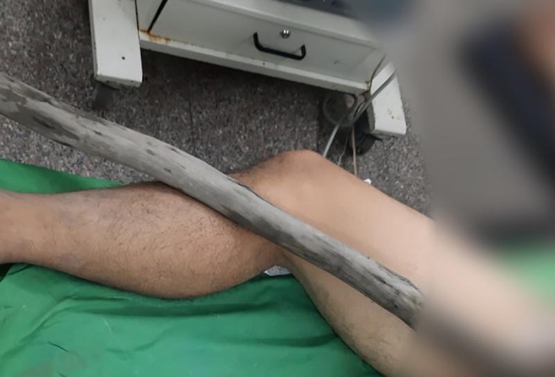 Người đàn ông bị cây gỗ đâm xuyên sinh môn đến bụng