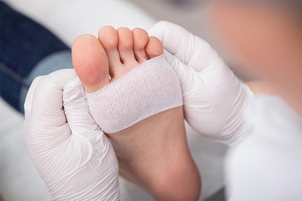 Biểu hiện ở bàn chân cảnh báo bệnh tiểu đường đang diễn tiến trong bạn