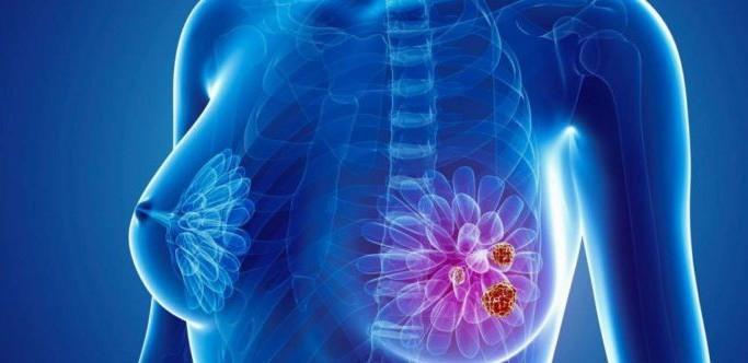 Nền tảng công nghệ mới giúp cải thiện chẩn đoán ung thư vú tại Việt Nam