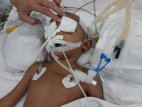 Bị dượng đâm xuyên hốc mắt, bé trai 4 tuổi nguy kịch