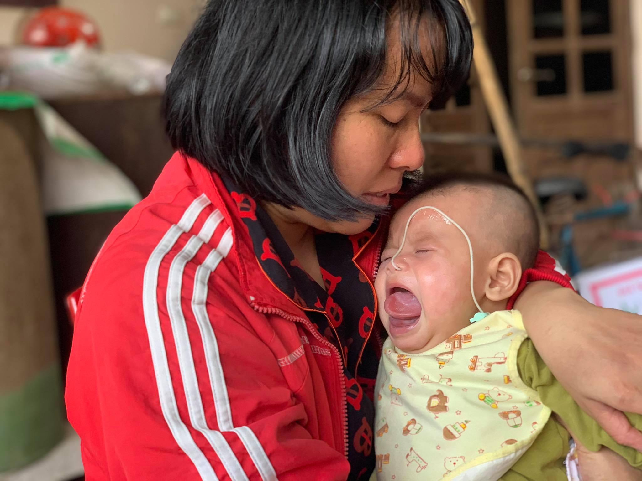 Khối u sưng phồng kín miệng, bé gái 6 tháng mắc đau đớn triền miên