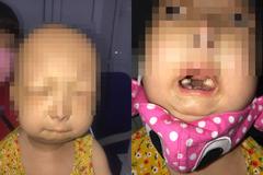 Bé gái Thái Bình 6 tuổi đã bị lão hoá như người già