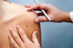 Năm triệu chứng giúp phát hiện ung thư da kịp thời