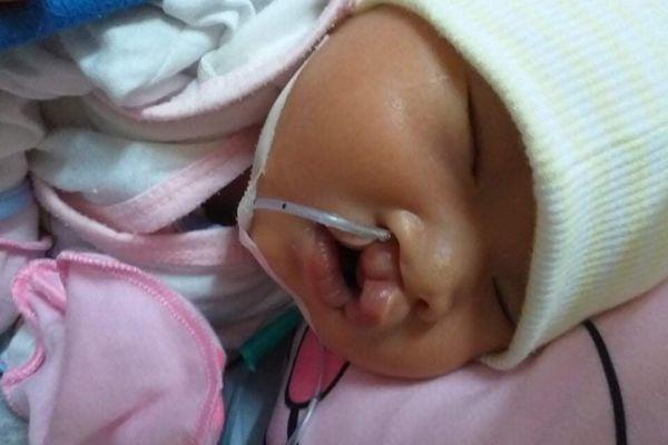 Sự sống mong manh của bé gái 1 tuổi mắc bệnh tim bẩm sinh, hở hàm ếch