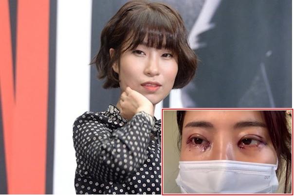 Diễn viên hài Hàn Quốc 31 tuổi 'dao kéo' thay đổi diện mạo
