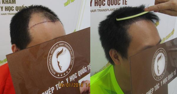 Thêm hy vọng cho những người tóc thưa, tóc hói
