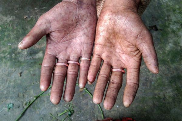 Hội chứng không có dấu vân tay khiến nhiều người khốn khổ