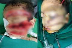 Bé trai 5 tuổi nguy kịch sau khi bị bố chém