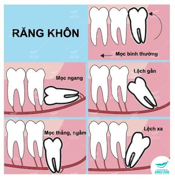 Giảm bớt nỗi sợ đau khi nhổ răng khôn với công nghệ Piezotome - VietNamNet