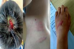Bé trai 9 tuổi ở Gia Lai nghi bị cha đánh toác đầu, bầm tím người