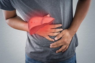 Các biểu hiện trên da cho biết gan bạn đang cầu cứu
