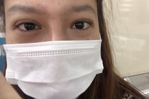 Cựu thành viên St.319 có nguy cơ bị khiếm thị