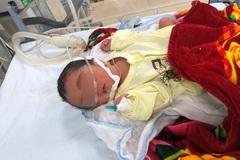 Mẹ cạn sạch nước ối ở tuần thai 23, em bé vẫn chào đời khỏe mạnh