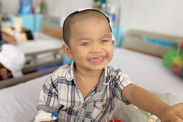Ngã xe đạp, bé trai 2 tuổi bị lõm hộp sọ