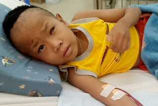 Thương bé trai hỏng mắt, da bong từng mảng vì căn bệnh mãn tính