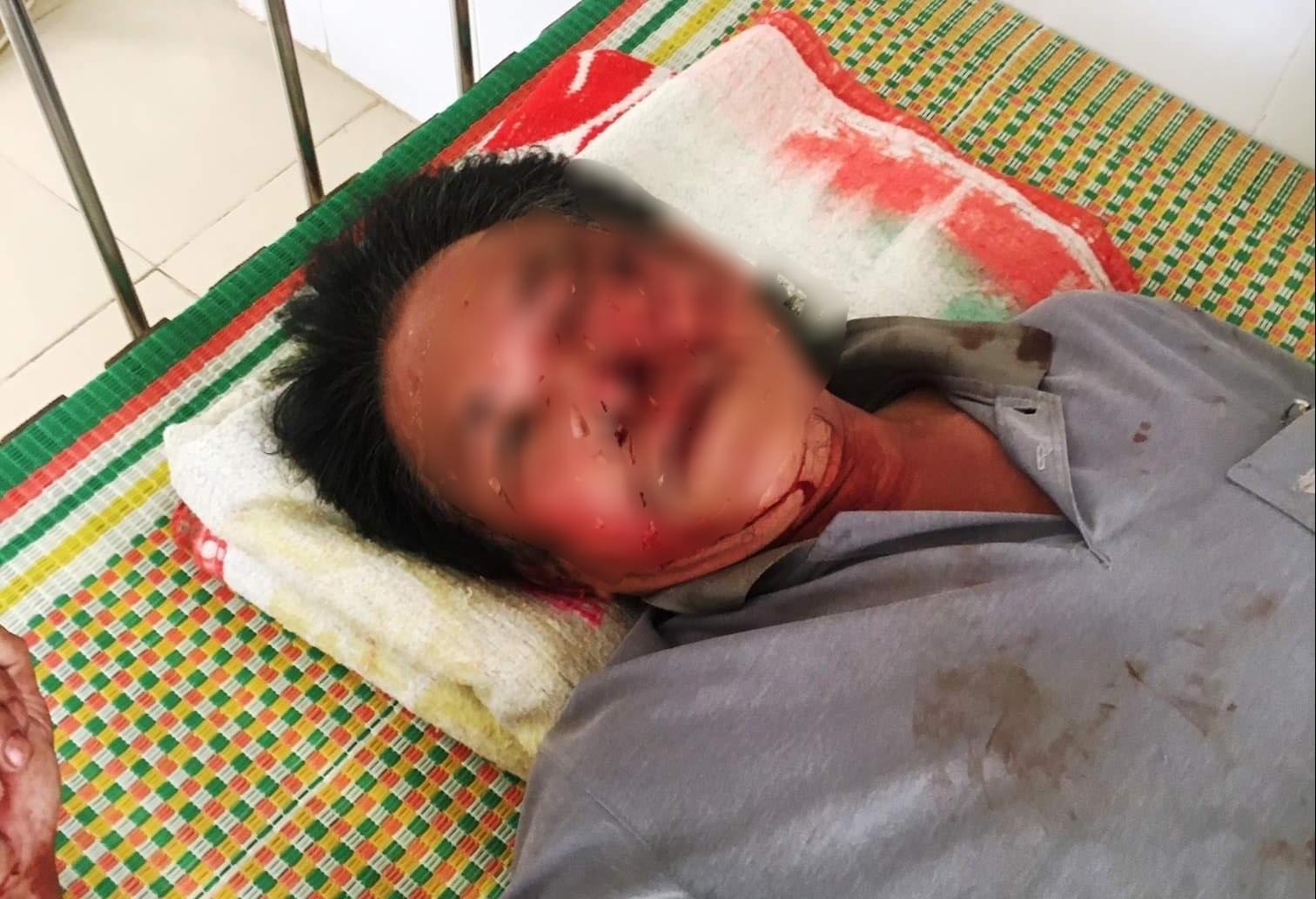 Bị nhắc nhở, bố con nguyên bí thư xã ở Thanh Hóa đánh dân nhập viện