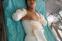 Chồng bị điện giật cắt cụt 2 tay, vợ con nheo nhóc cầu cứu