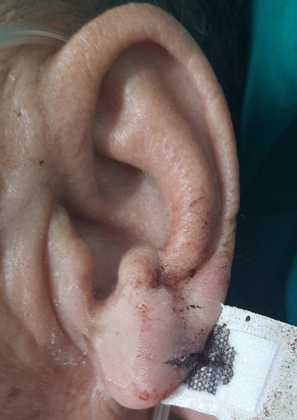 Bác sĩ Bạch Mai giật mình cách cứa tai chữa đột quỵ