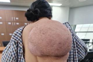 Người phụ nữ Thanh Hoá cõng 'mai rùa' suốt 30 năm