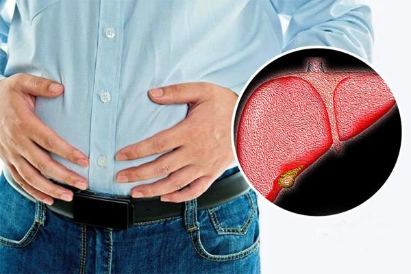 Dấu hiệu ở bụng cảnh báo gan nhiễm mỡ