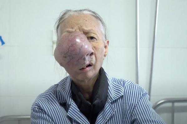 Người phụ nữ mọc khối u to như quả bưởi trên mặt, phá huỷ mắt