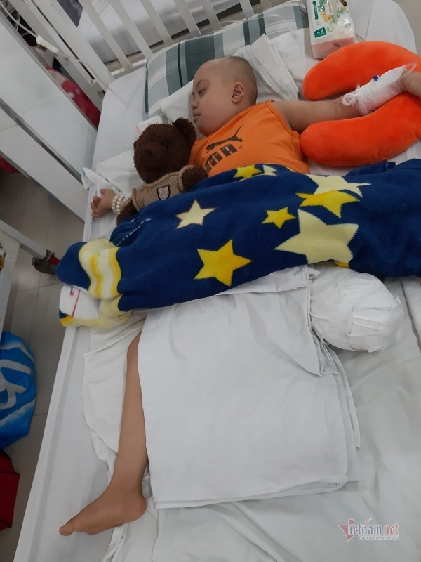 Bị cưa chân, bé gái mắc bệnh Down hoảng hốt khóc òa