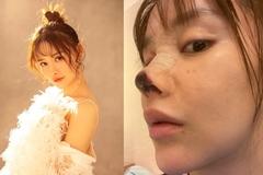 Diễn viên Trung Quốc thẩm mỹ biến dạng hoại tử mũi