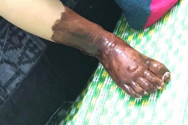 Bé gái bị bỏng nặng, cháy đen khuôn mặt rất cần được giúp đỡ