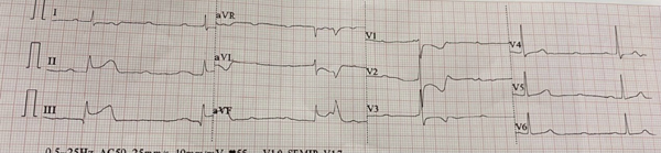 Chuyên gia chia sẻ về 'giờ vàng' của người bệnh nhồi máu cơ tim cấp