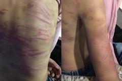 Xác minh vụ bé gái bị mẹ đẻ và người tình bạo hành dã man ở Hà Nội
