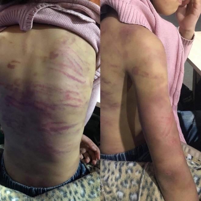 Xác minh bé gái 15 tuổi bị mẹ đẻ và người tình bạo hành dã man ở Hà Nội