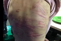 Hà Nội: CA điều tra nghi án bé gái 12 tuổi bị mẹ đẻ trói tay, chân đánh bầm tím khắp cơ thể