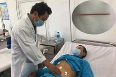 Nuốt tăm xỉa răng dài 5 cm, người đàn ông bị thủng dạ dày